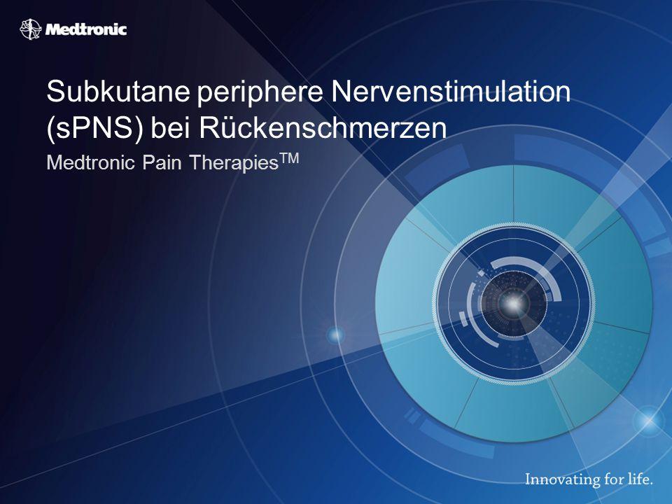 Subkutane periphere Nervenstimulation (sPNS) bei Rückenschmerzen