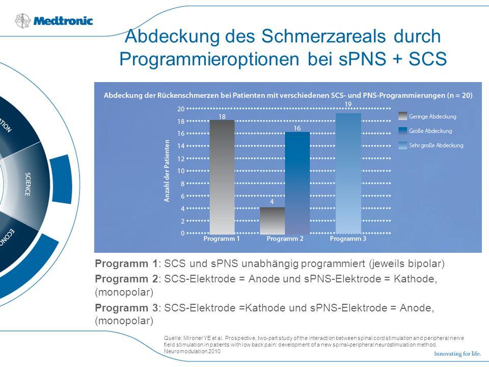 Abdeckung des Schmerzareals durch Programmieroptionen bei sPNS + SCS