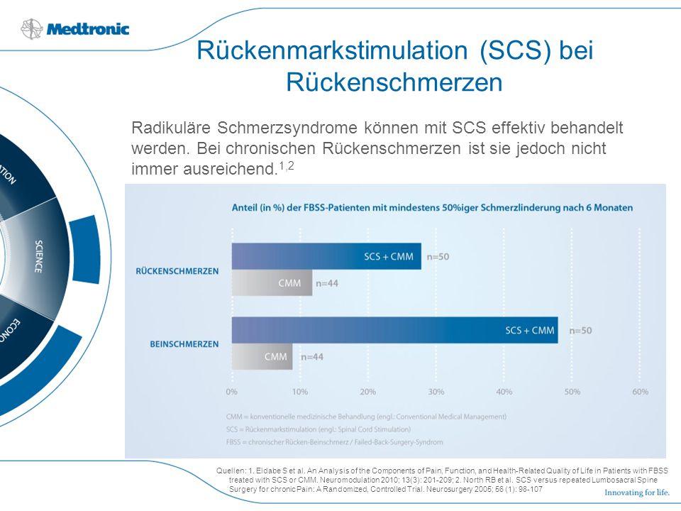 Rückenmarkstimulation (SCS) bei Rückenschmerzen