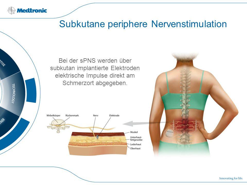 Subkutane periphere Nervenstimulation
