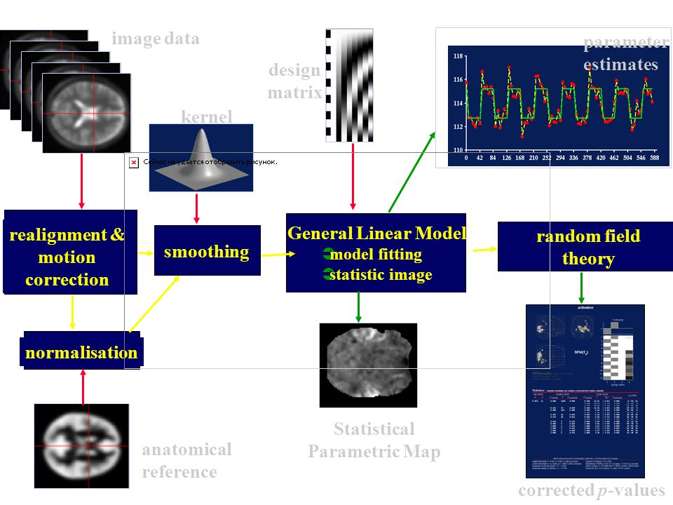 realignment & motion correction Statistical Parametric Map
