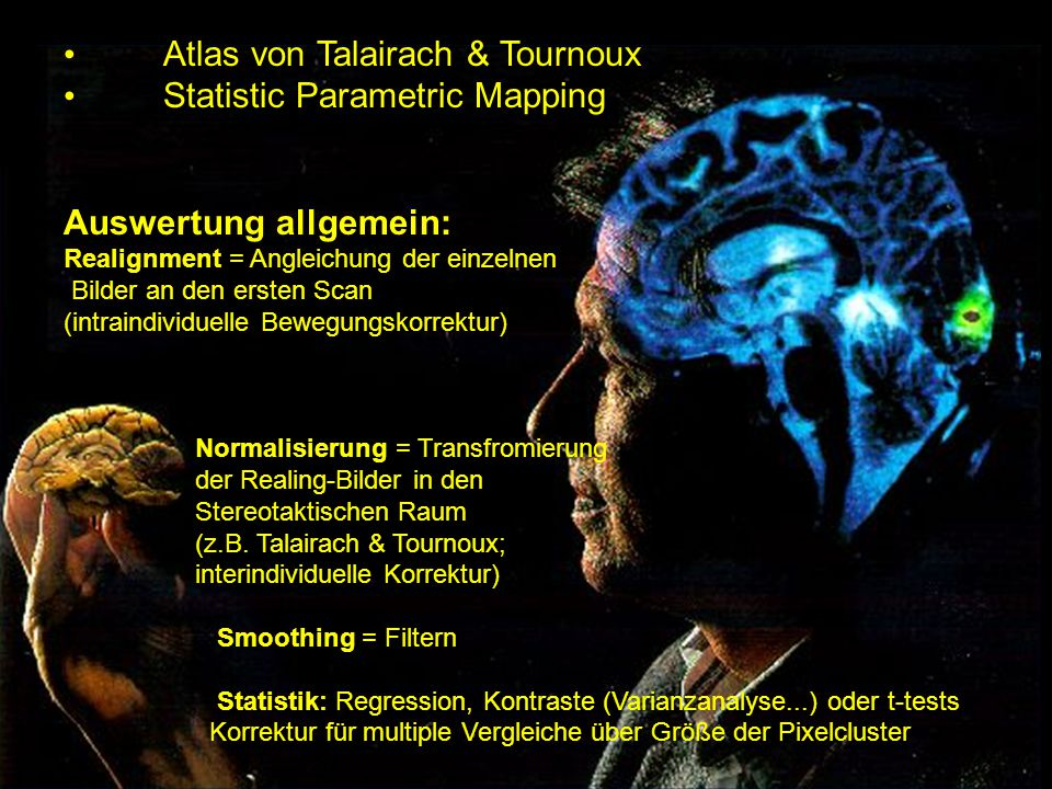 Atlas von Talairach & Tournoux Statistic Parametric Mapping
