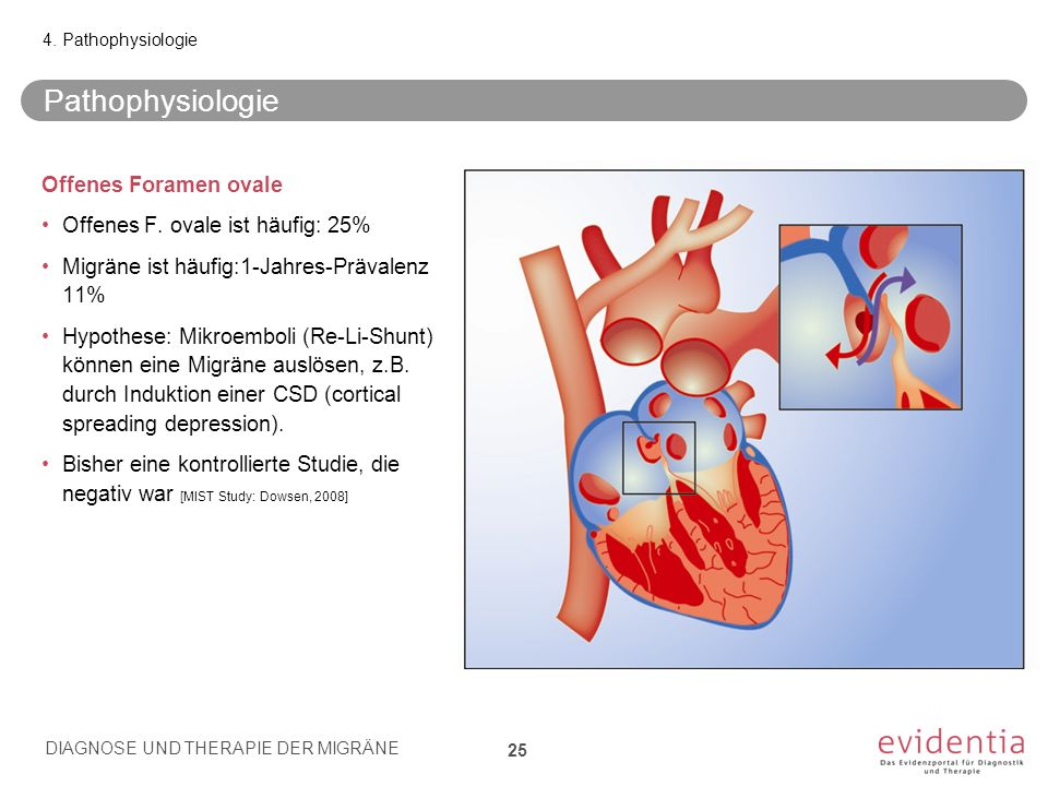 Pathophysiologie Offenes Foramen ovale