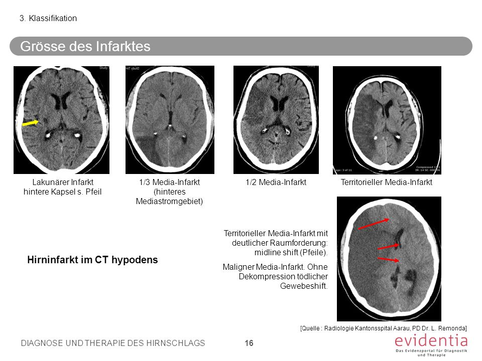 Grösse des Infarktes Hirninfarkt im CT hypodens 3. Klassifikation