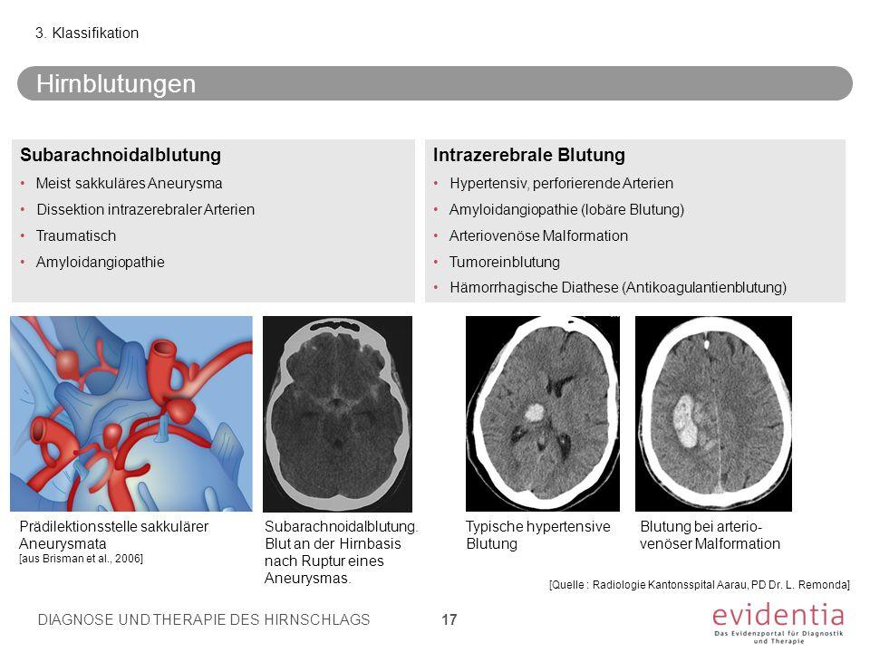 Hirnblutungen Subarachnoidalblutung Intrazerebrale Blutung