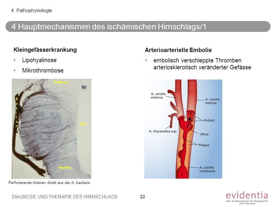 4 Hauptmechanismen des ischämischen Hirnschlags/1