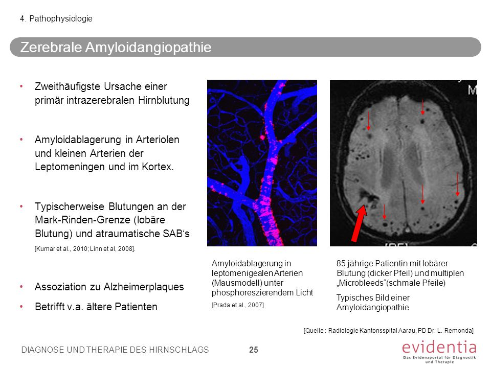 Zerebrale Amyloidangiopathie