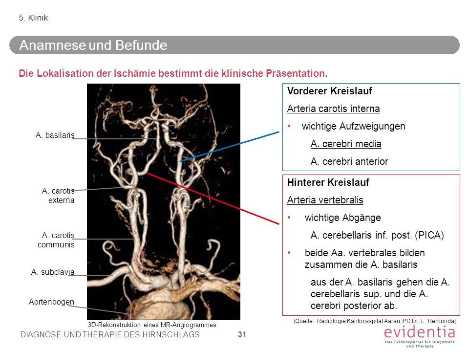 5. Klinik Anamnese und Befunde. Die Lokalisation der Ischämie bestimmt die klinische Präsentation.