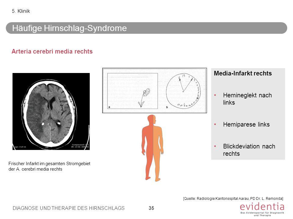 Häufige Hirnschlag-Syndrome