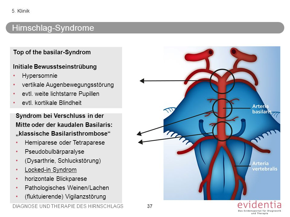 Hirnschlag-Syndrome Top of the basilar-Syndrom