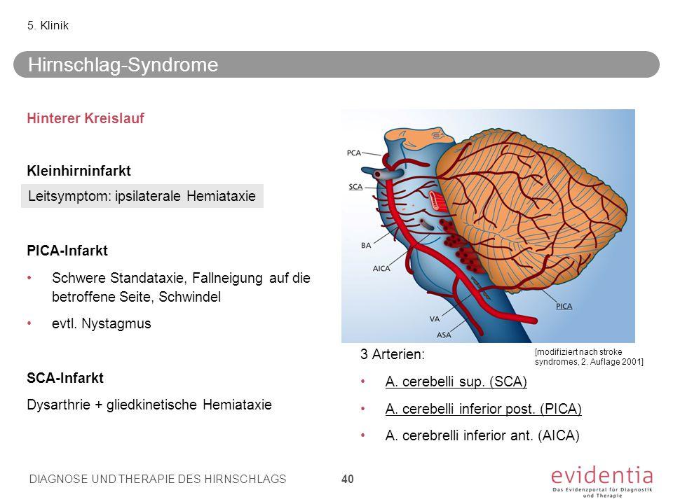 Hirnschlag-Syndrome Hinterer Kreislauf Kleinhirninfarkt PICA-Infarkt