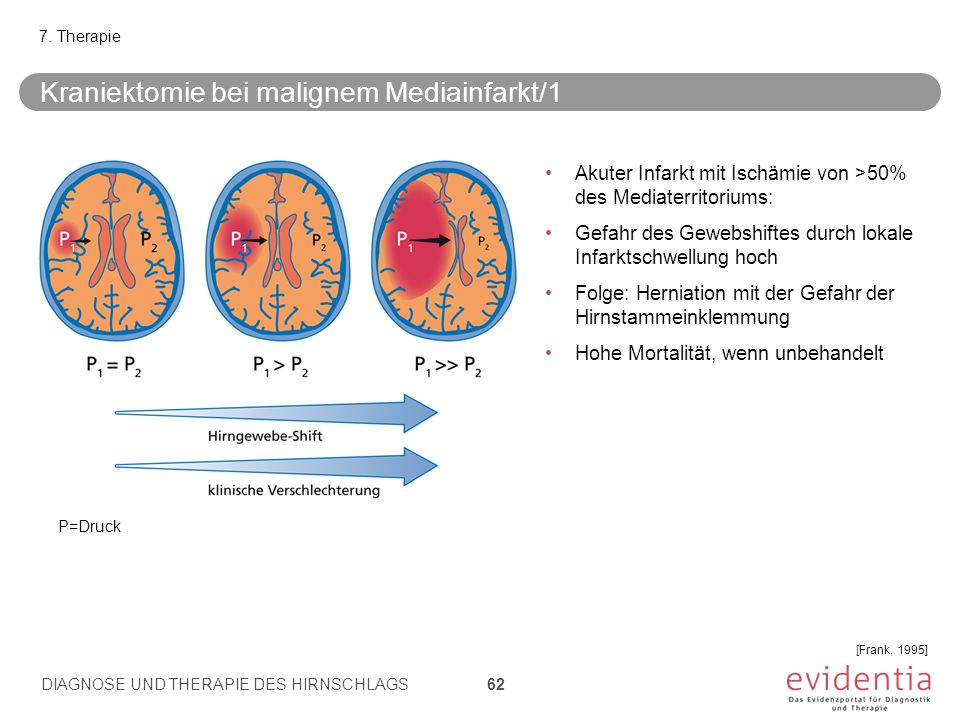 Kraniektomie bei malignem Mediainfarkt/1