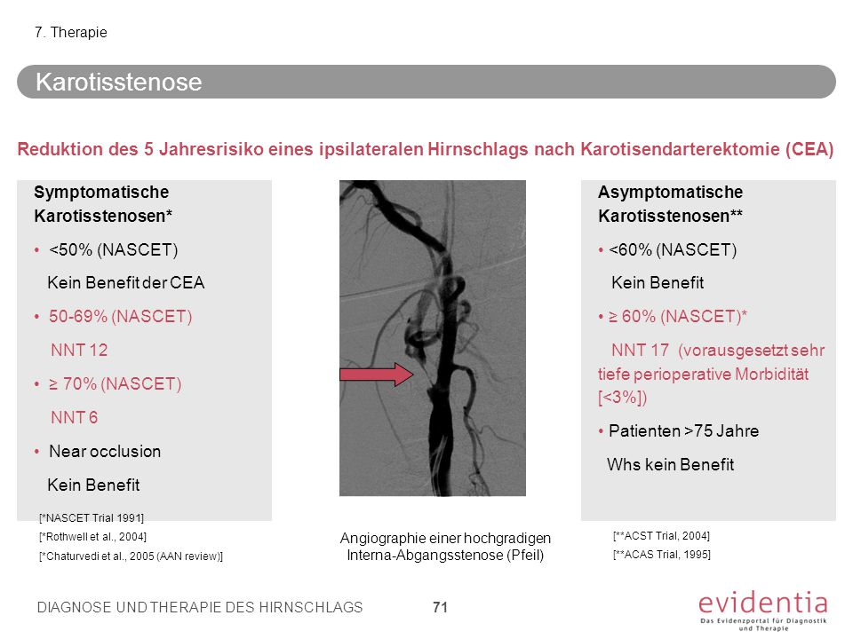 Angiographie einer hochgradigen Interna-Abgangsstenose (Pfeil)
