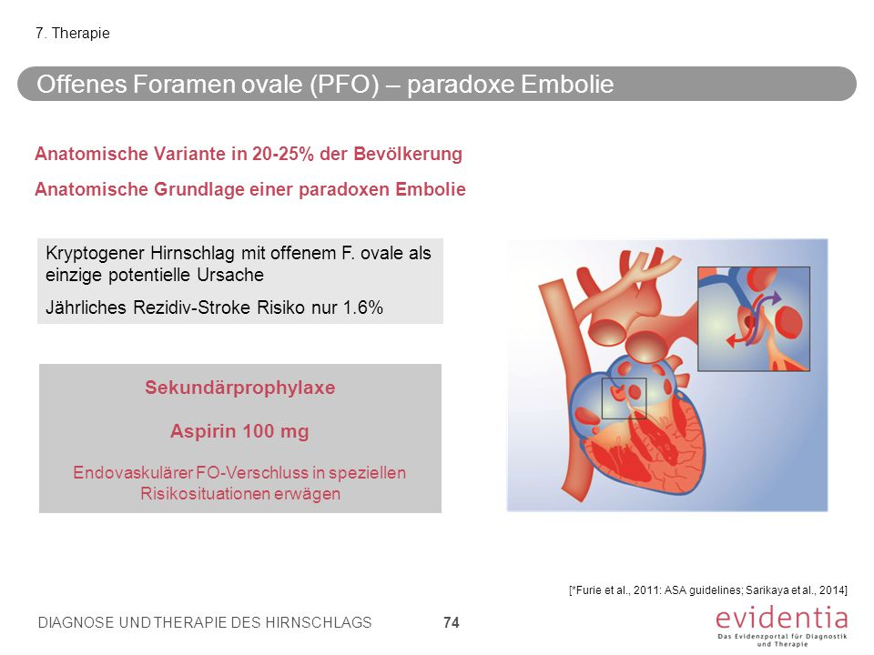 Offenes Foramen ovale (PFO) – paradoxe Embolie