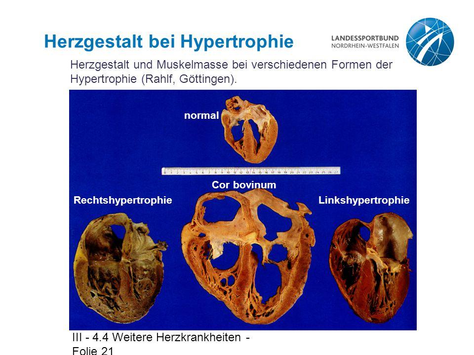 Herzgestalt bei Hypertrophie