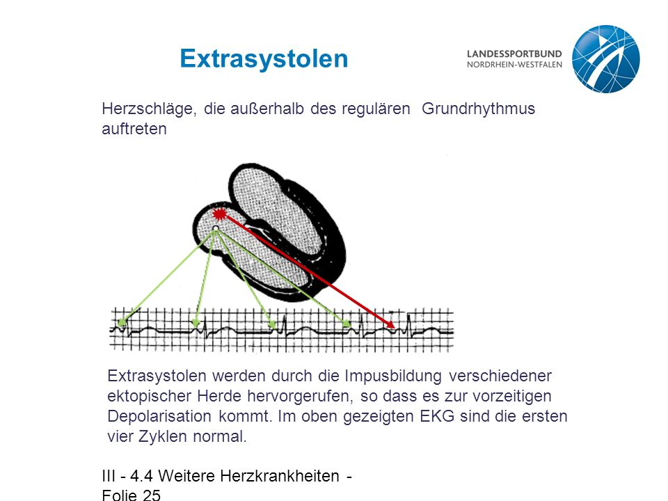 Extrasystolen Herzschläge, die außerhalb des regulären Grundrhythmus auftreten.