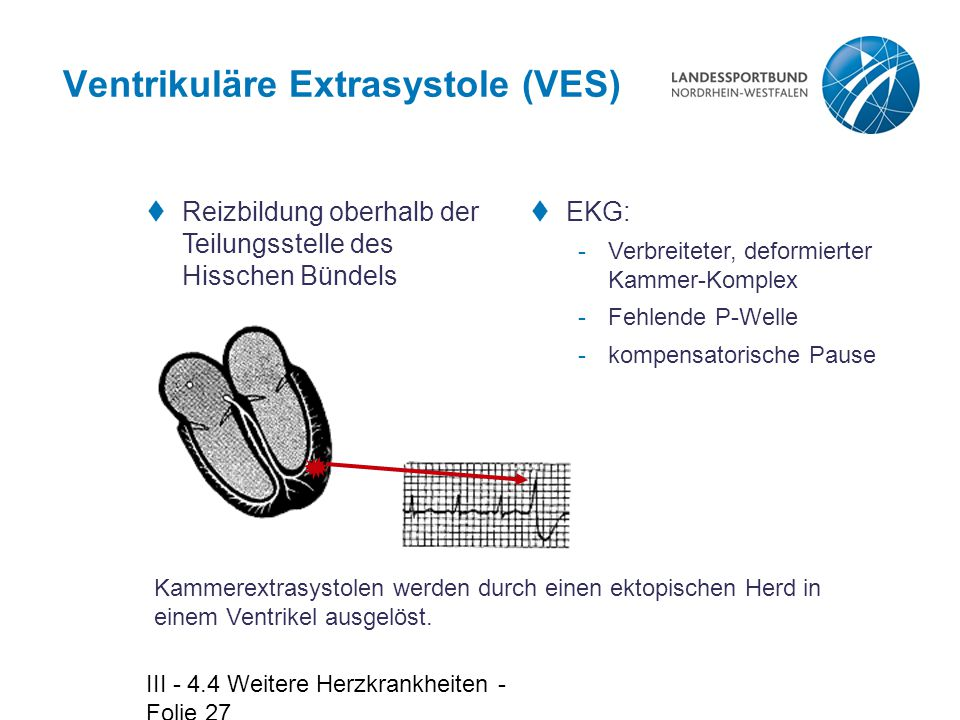 Ventrikuläre Extrasystole (VES)