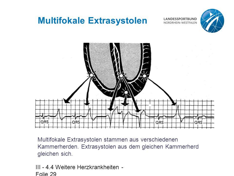 Multifokale Extrasystolen