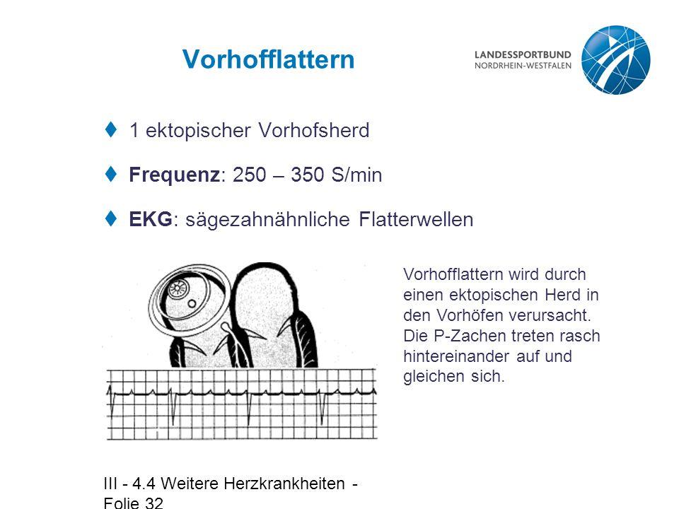 Vorhofflattern 1 ektopischer Vorhofsherd Frequenz: 250 – 350 S/min
