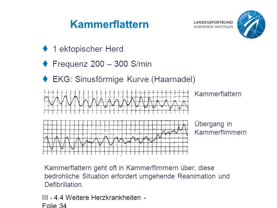 Kammerflattern 1 ektopischer Herd Frequenz 200 – 300 S/min