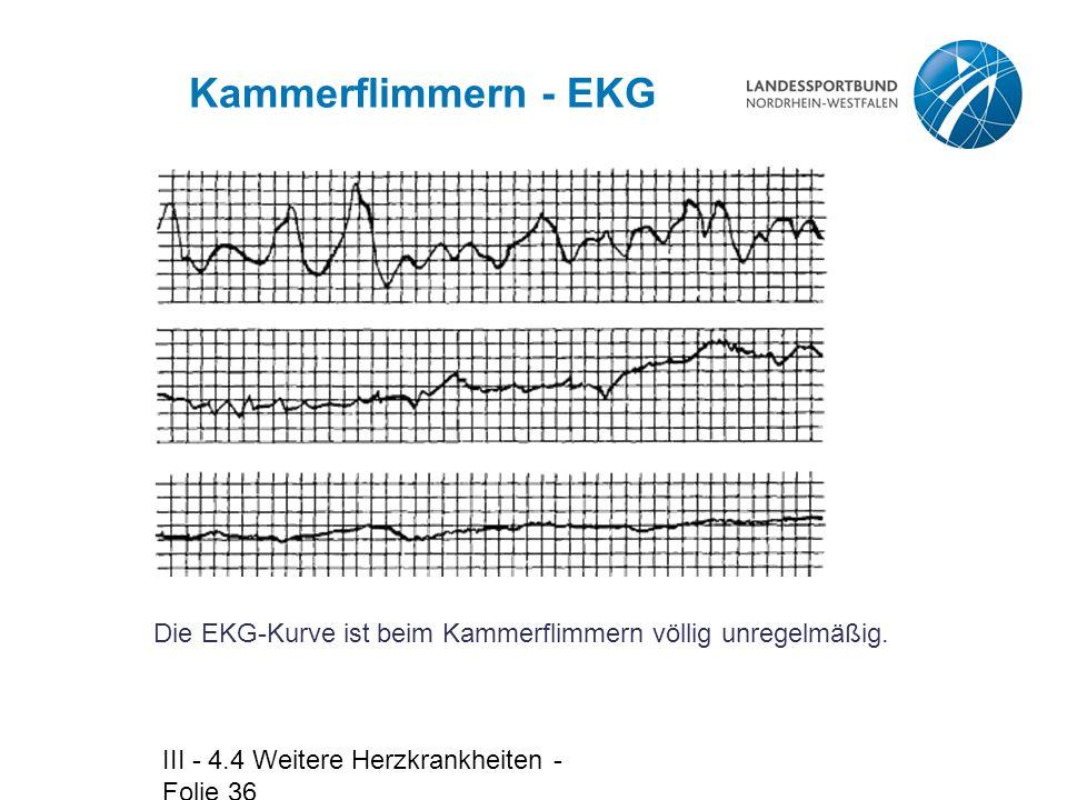 Kammerflimmern - EKG Die EKG-Kurve ist beim Kammerflimmern völlig unregelmäßig.