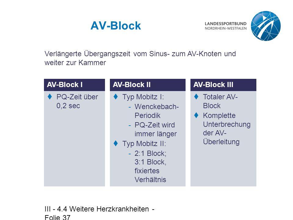 AV-Block Verlängerte Übergangszeit vom Sinus- zum AV-Knoten und weiter zur Kammer. AV-Block I. AV-Block II.