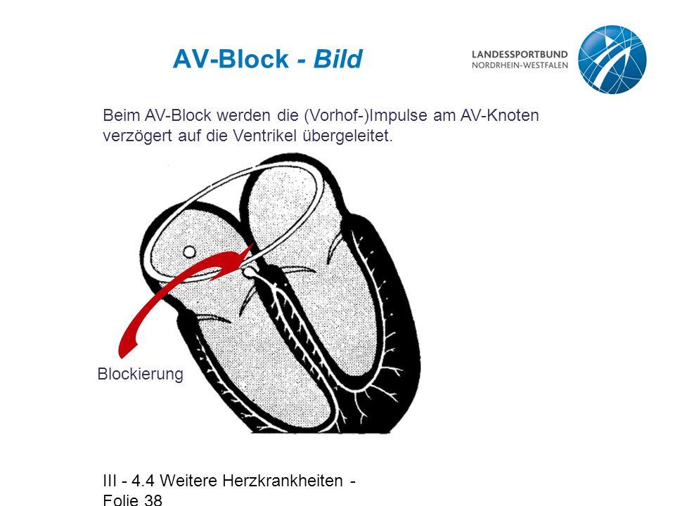 AV-Block - Bild Beim AV-Block werden die (Vorhof-)Impulse am AV-Knoten verzögert auf die Ventrikel übergeleitet.