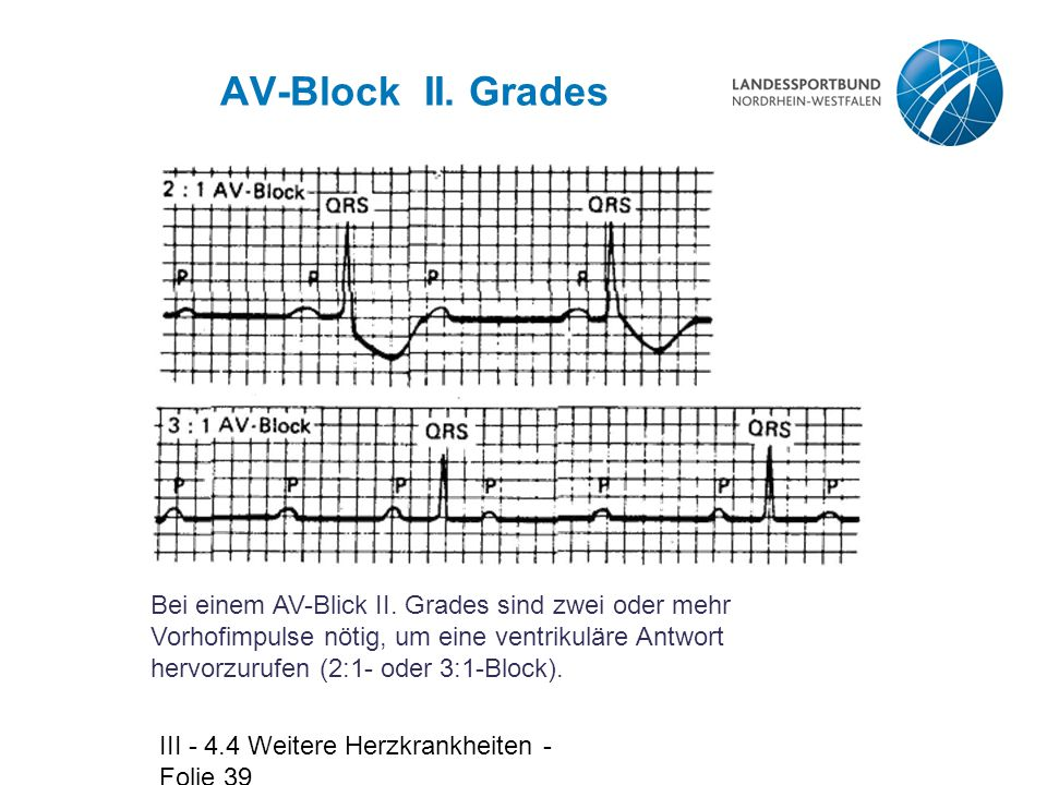 AV-Block II. Grades