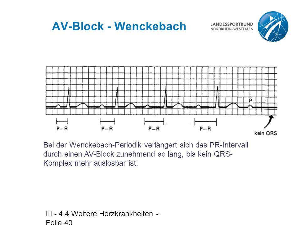 AV-Block - Wenckebach