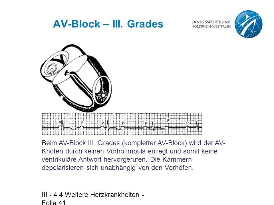 AV-Block – III. Grades