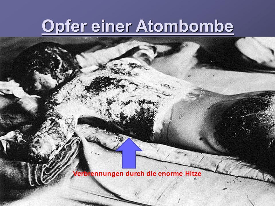 Opfer einer Atombombe Verbrennungen durch die enorme Hitze