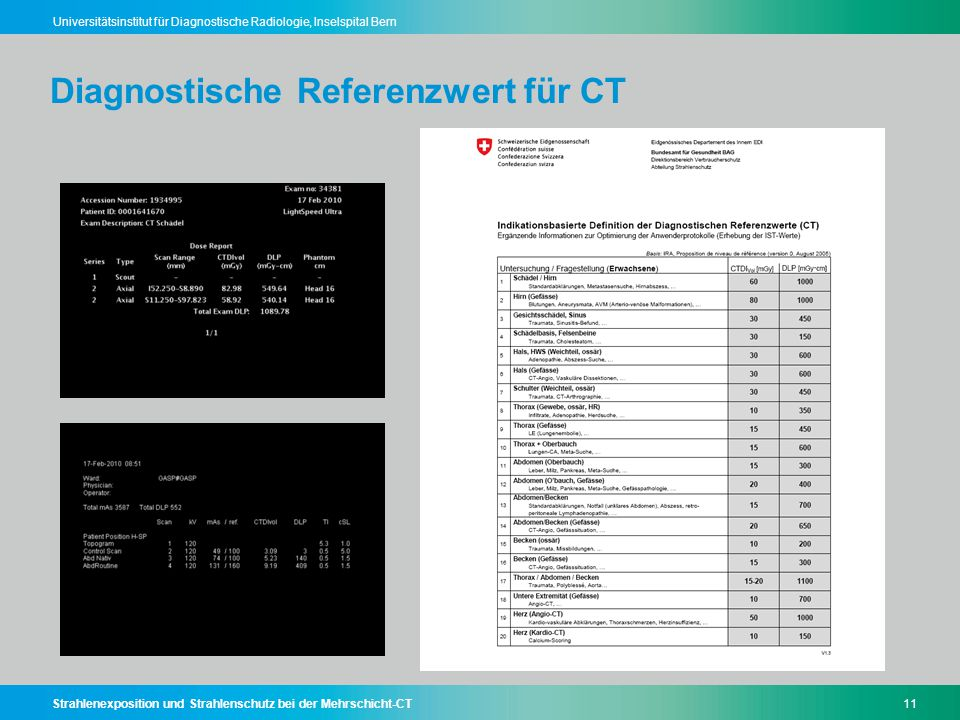 Diagnostische Referenzwert für CT