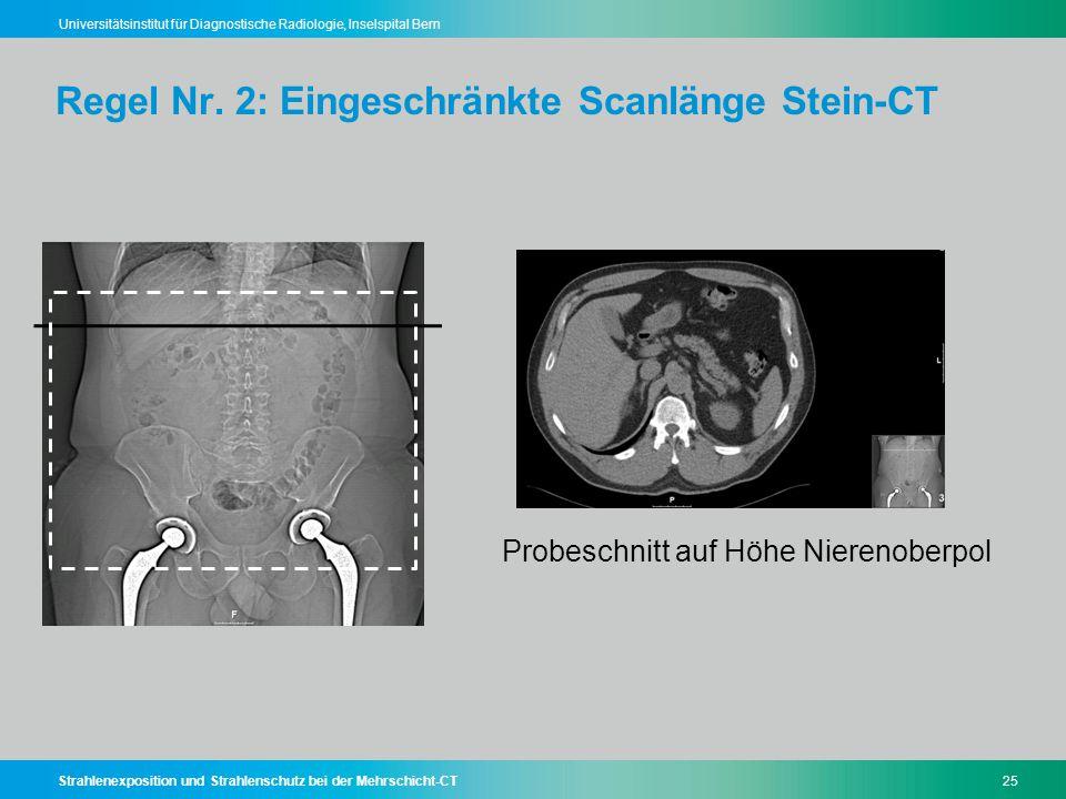 Regel Nr. 2: Eingeschränkte Scanlänge Stein-CT