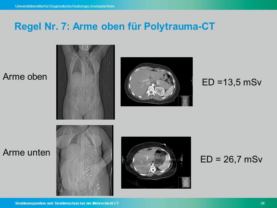 Regel Nr. 7: Arme oben für Polytrauma-CT