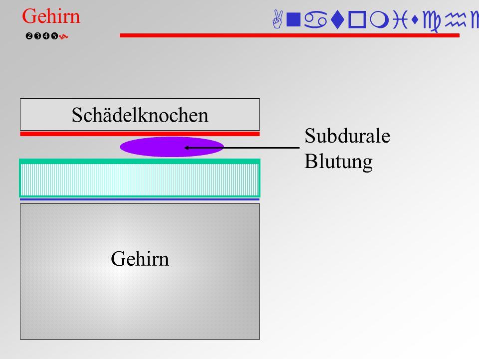 Subdurale Blutung Anatomische Einteilung Gehirn Schädelknochen