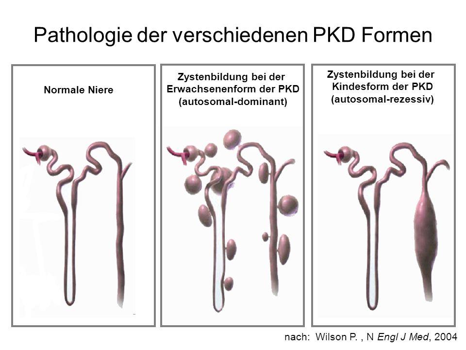 Pathologie der verschiedenen PKD Formen