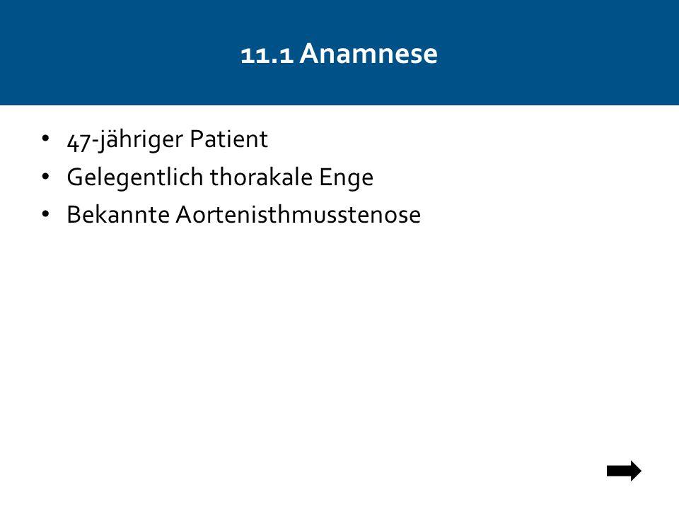 11.1 Anamnese 47-jähriger Patient Gelegentlich thorakale Enge