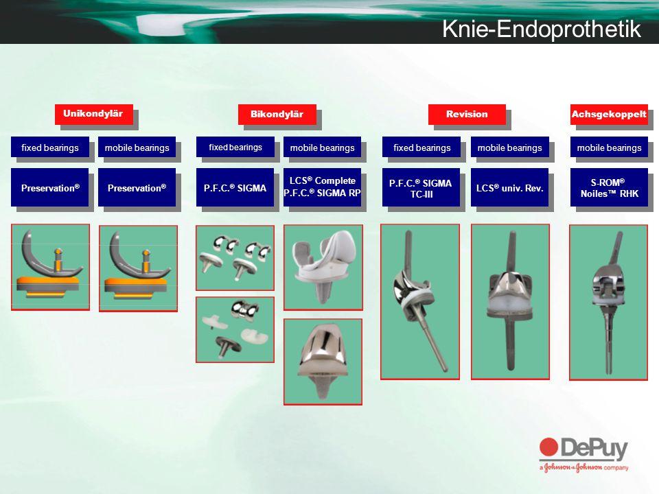 Knie-Endoprothetik Unikondylär Bikondylär Revision Achsgekoppelt