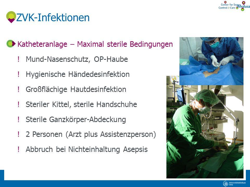 ZVK-Infektionen Katheteranlage – Maximal sterile Bedingungen