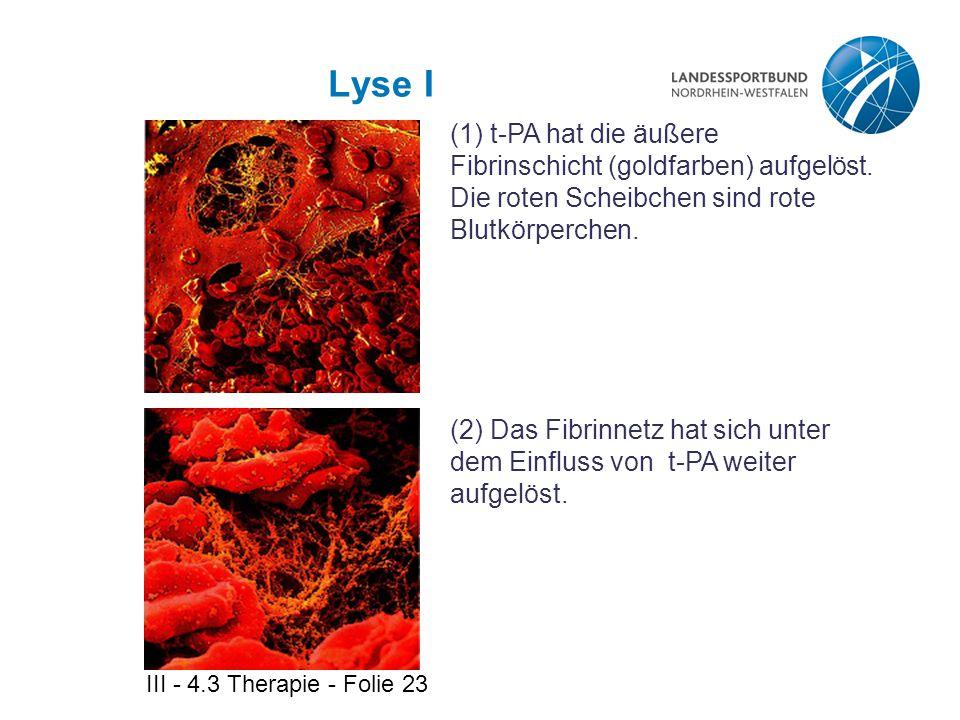 Lyse I (1) t-PA hat die äußere Fibrinschicht (goldfarben) aufgelöst. Die roten Scheibchen sind rote Blutkörperchen.
