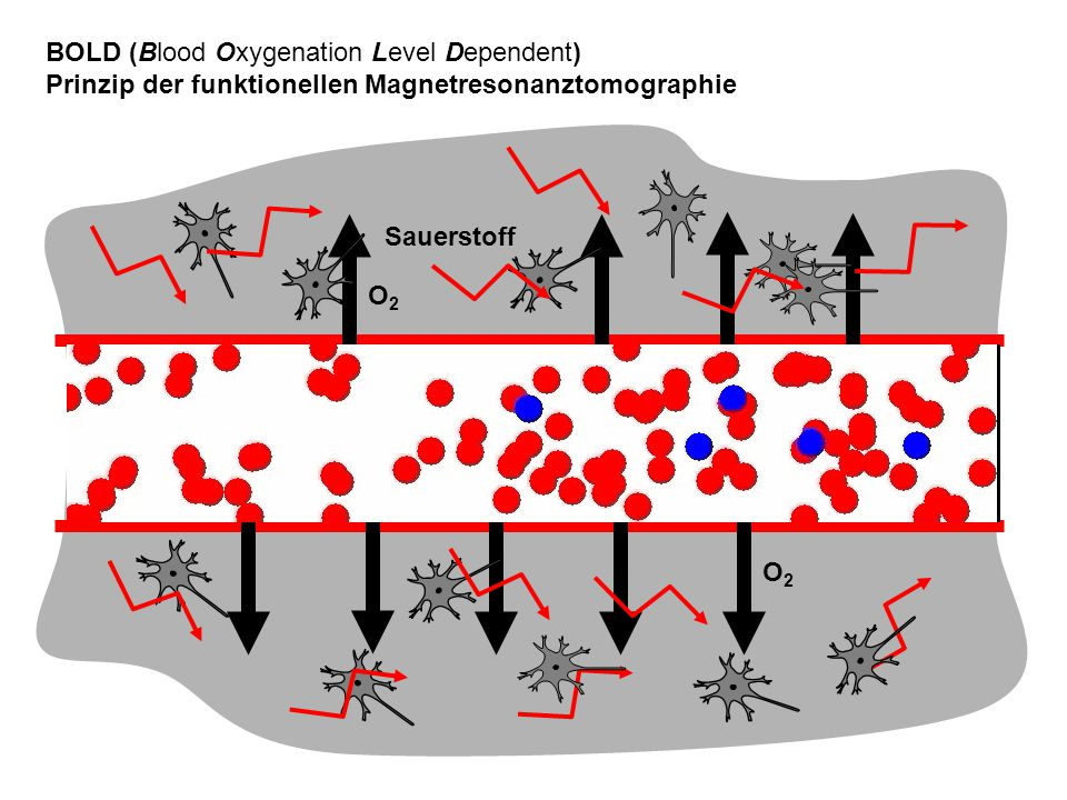 BOLD (Blood Oxygenation Level Dependent)