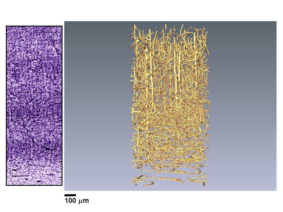 Hier sehen sie die Blutgefässe von einer Hirnprobe