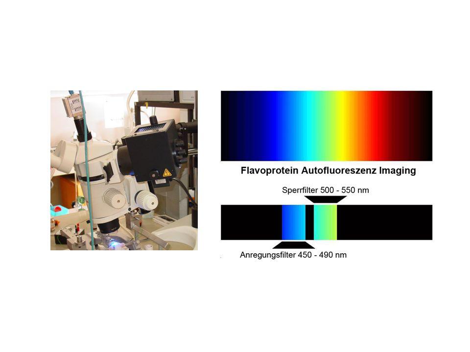 Die zweite Methode, die wir gleichzeitig angewendet haben, ist die sogenannte Flavoprotein Autofluoreszenz.