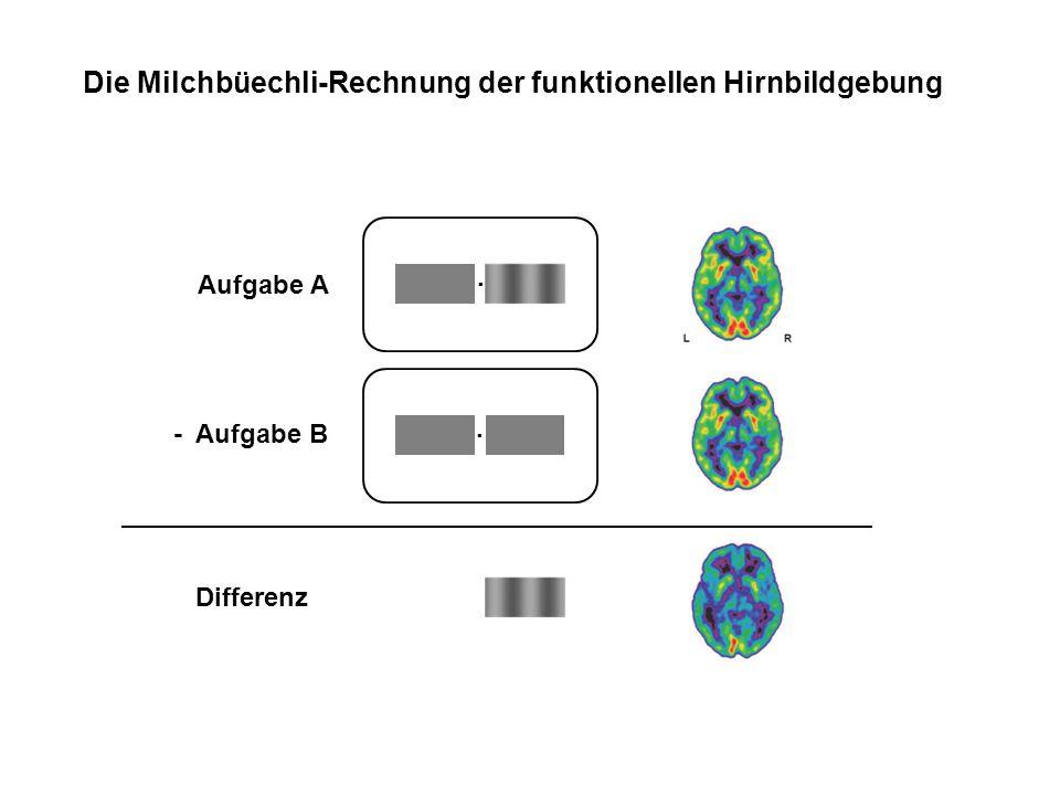 Die Milchbüechli-Rechnung der funktionellen Hirnbildgebung