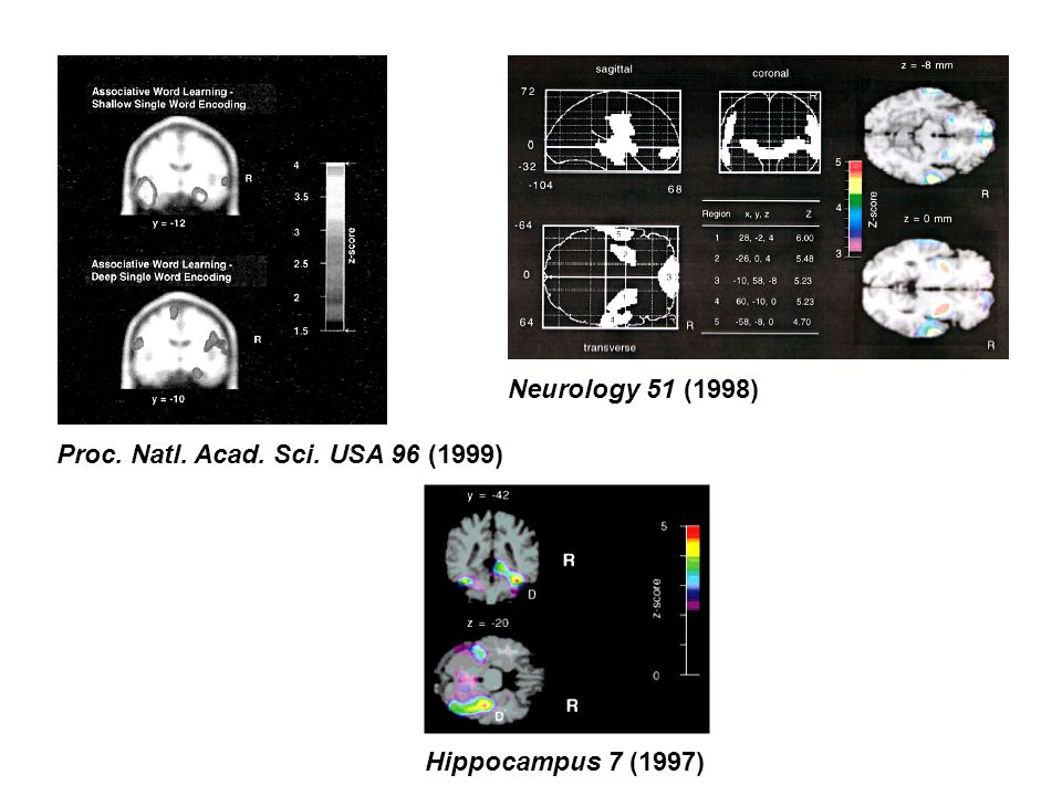 Proc. Natl. Acad. Sci. USA 96 (1999) Neurology 51 (1998)