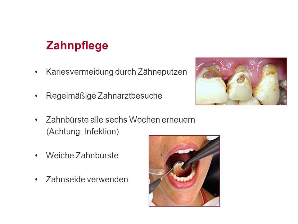 Zahnpflege Kariesvermeidung durch Zähneputzen