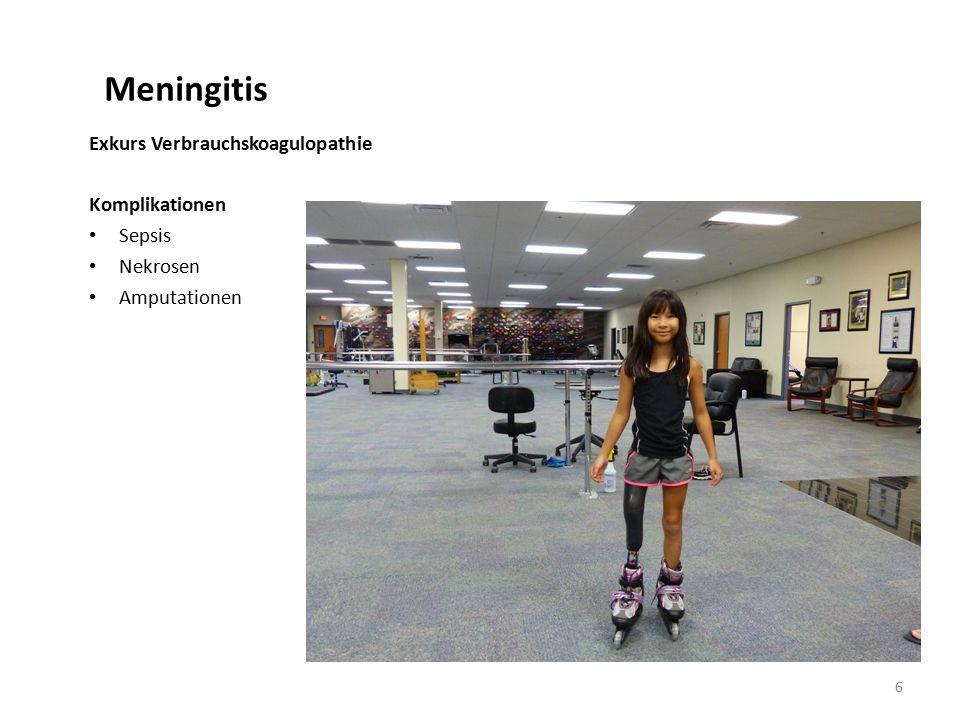 Meningitis Exkurs Verbrauchskoagulopathie Komplikationen Sepsis