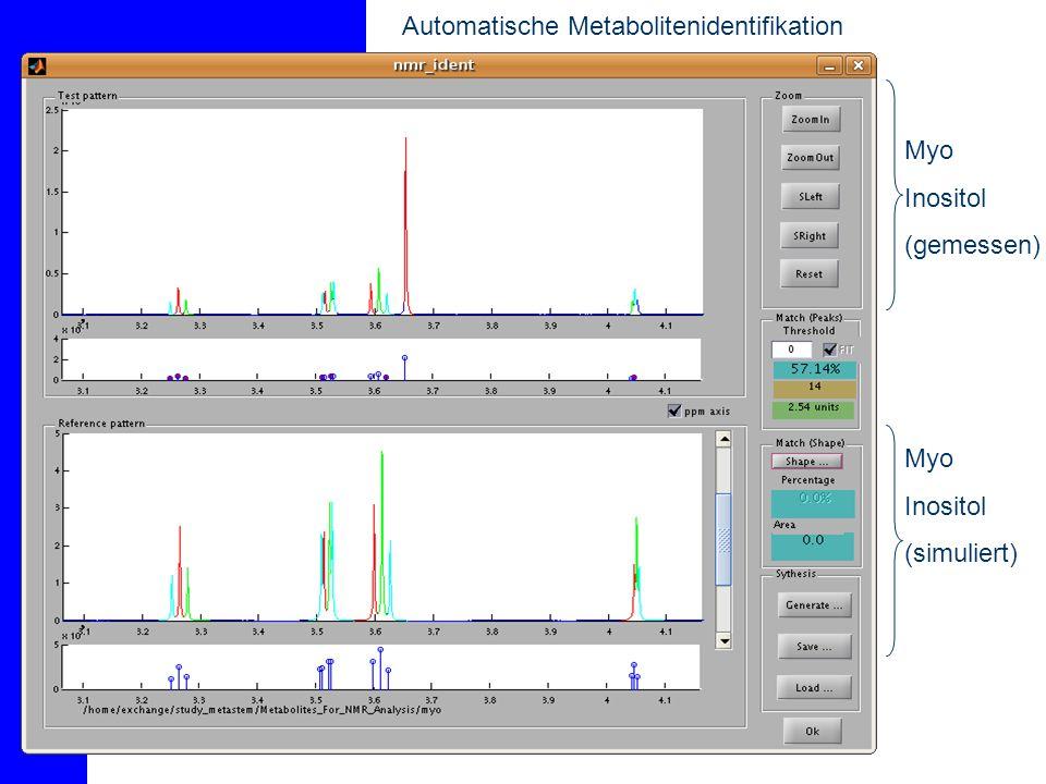 Automatische Metabolitenidentifikation