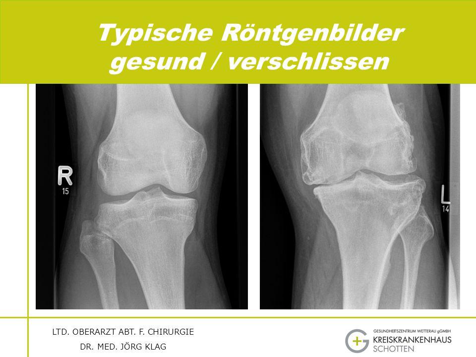Typische Röntgenbilder gesund / verschlissen