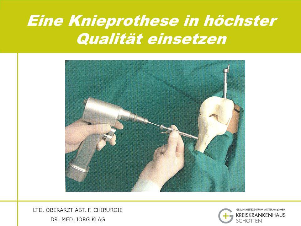 Eine Knieprothese in höchster Qualität einsetzen